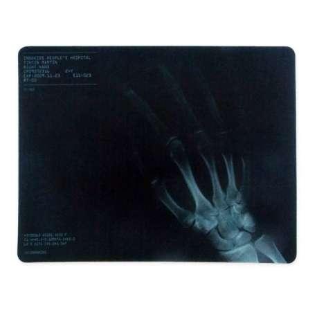 Tapis de souris informatique radiographie main
